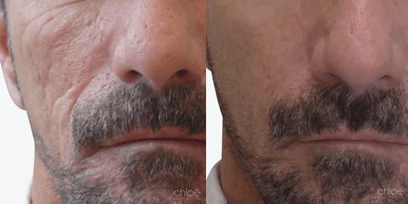 Fillers For Acne Scar